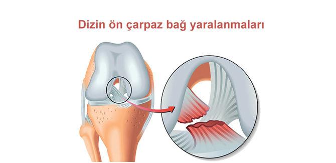 Dizin ön çarpaz bağ yaralanmaları – Uzm. Dr. Travmatoloq Ortoped, Vüqar Quliyev